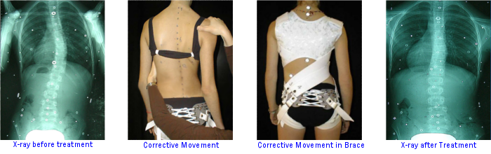 Corrective Movement with Spinecor Brace