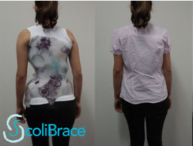 Scoliobrace